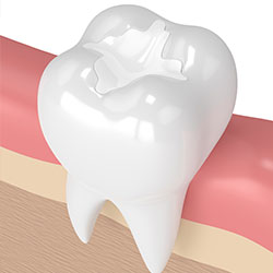 virtual model of a tooth with a composite filling