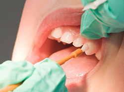 close-up of patient's teeth as a hygienist applies fluoride
